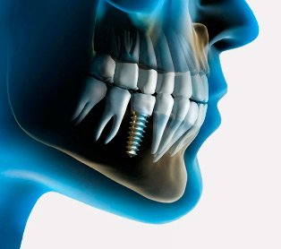 Clínica dental especializada, Implantes